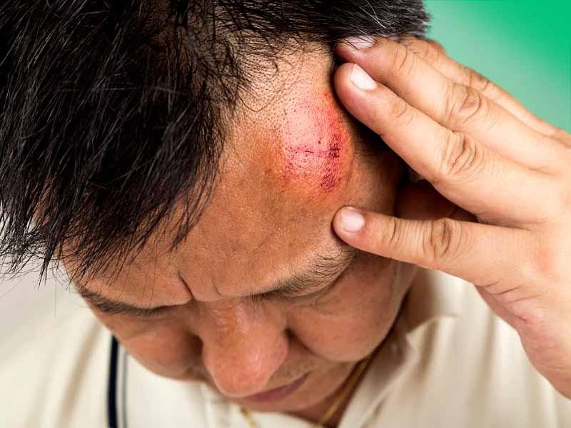 Механические травмы лица